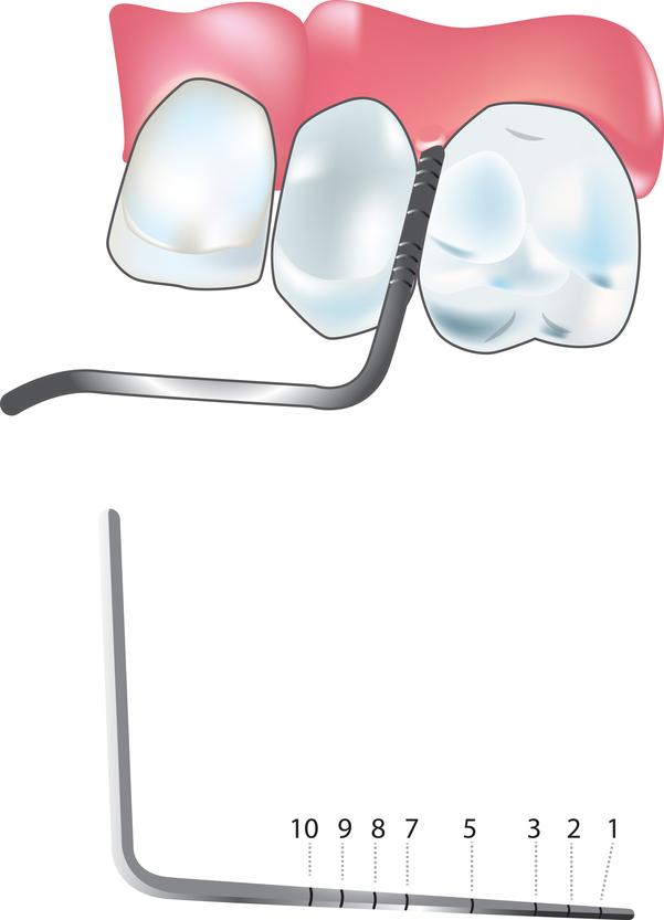 Servicios de periodoncia - Clínicas CitaDental