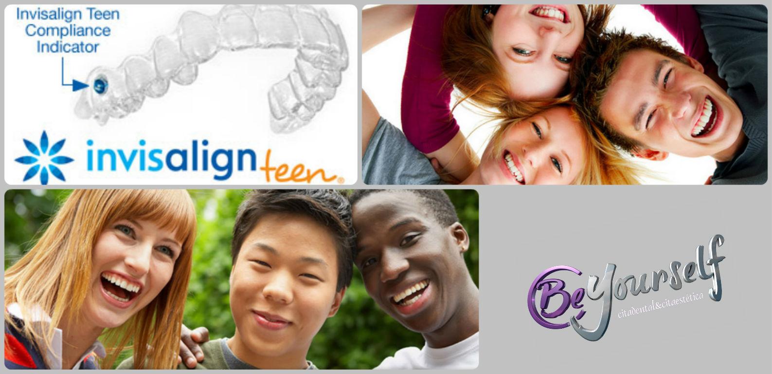 Invisalign Teen_Beyourself Centers