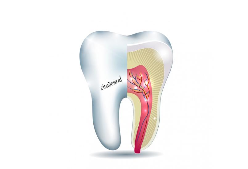 Los síntomas de la endodoncia