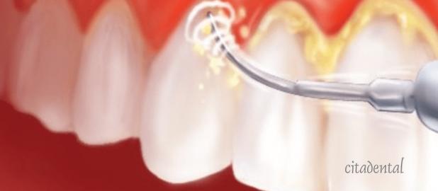 La placa dental