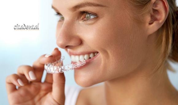 Cuidados del tratamiento de ortodoncia Invisalign