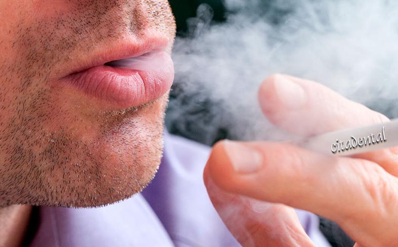 Salud dental en fumadores