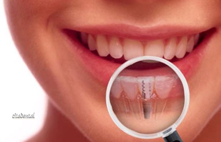 Evaluación en implantes dentales